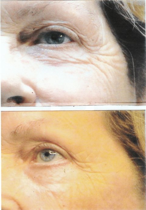Before and after 6 photo rejuvenation treatments
